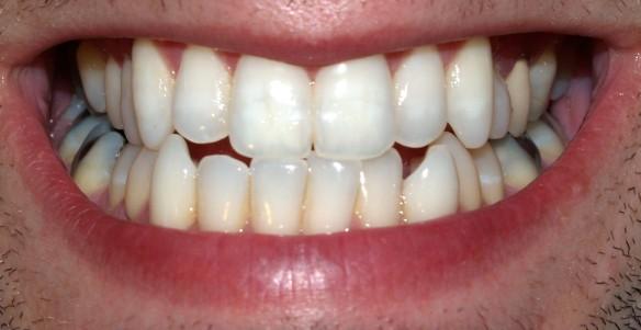 teeth_by_david_shankbone